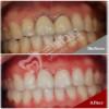 門牙烤瓷牙換全瓷牙修復案例