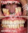 上頜全口牙缺失種植修復案例