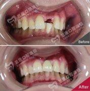 前牙種植牙案例展示
