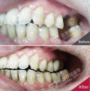 後牙種植牙案例展示
