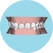 深圳箍牙|深覆合和深覆蓋要如何治療?
