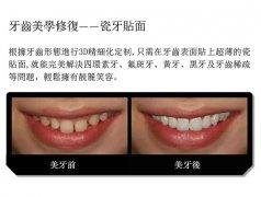 牙齿修复-瓷贴面案例展示