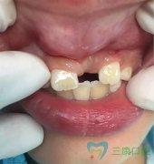 箍牙—8歲小男孩埋伏牙牽引案例