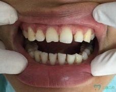 牙縫大—全瓷牙冠修復案例