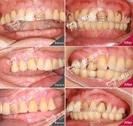 半口種植牙案例分享